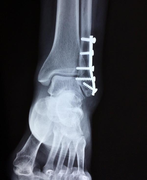 Cirurgias_Ortopedicas